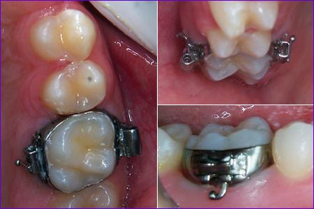 Bagues en orthodontie