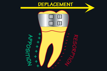 dents bagues apres trois mois