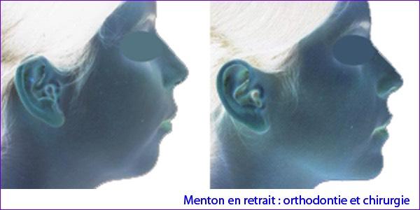 chirurgien maxillo facial avignon