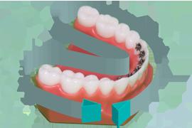 Brossage dentaire avec appareil orthodontique multiattache for Bagues dentaires interieur